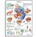 Schéma - artritida - AJ - 50x67 cm