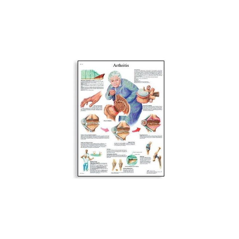 Schéma - artritida - 50x67 cm