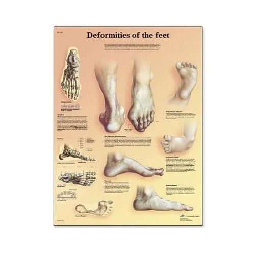 Schéma - deformace lidské nohy - 50x67 cm