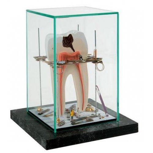 """MEDart™ - luxusní dekorace - """"Zub s nervy ve výstavbě"""""""