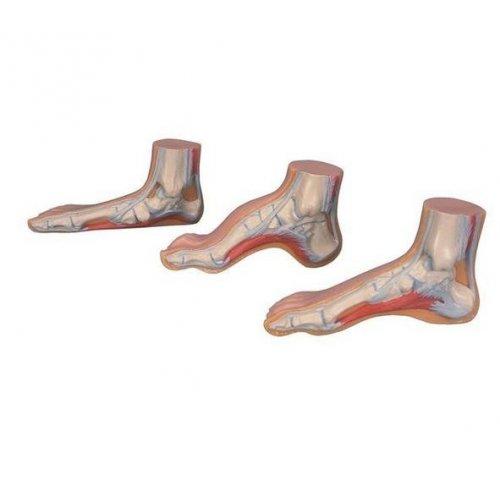 MEDart™ - serie modelů chodidel - normální, plochá a klenutá noha