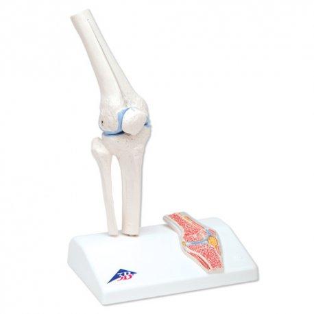Kloub kolenní mini - s příčným řezem