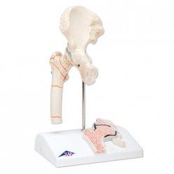 Model lidského kyčelního kloubu se zánětem a zlomeninou stehenní kosti