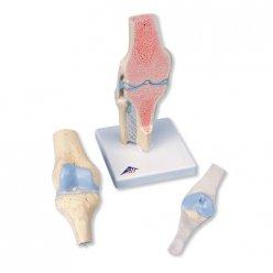 Průřez lidským kolenním kloubem - 3 části