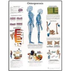 Schéma - osteoporóza - AJ - 50x67 cm