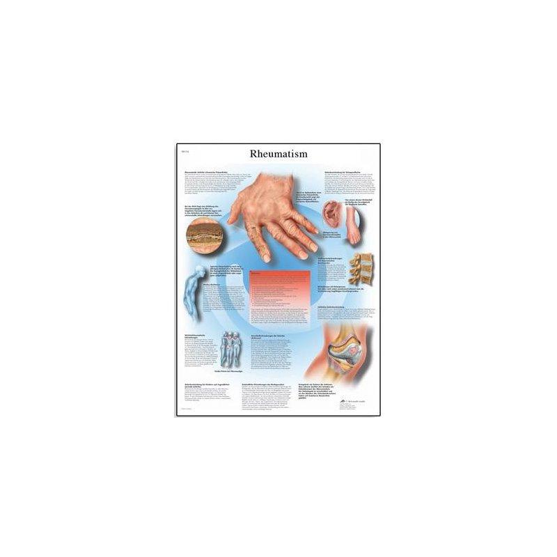 Schéma - revmatoidní artritida - AJ - 50x67 cm