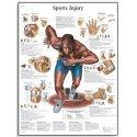 Schéma - sportovní zranění - AJ - 50x67 cm