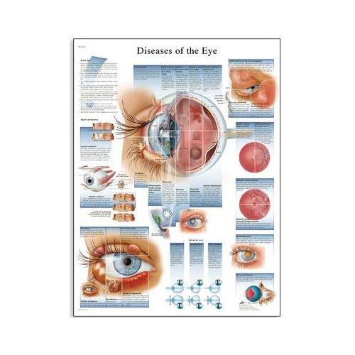 Schéma - nemoci lidského oka - AJ - 50x67 cm