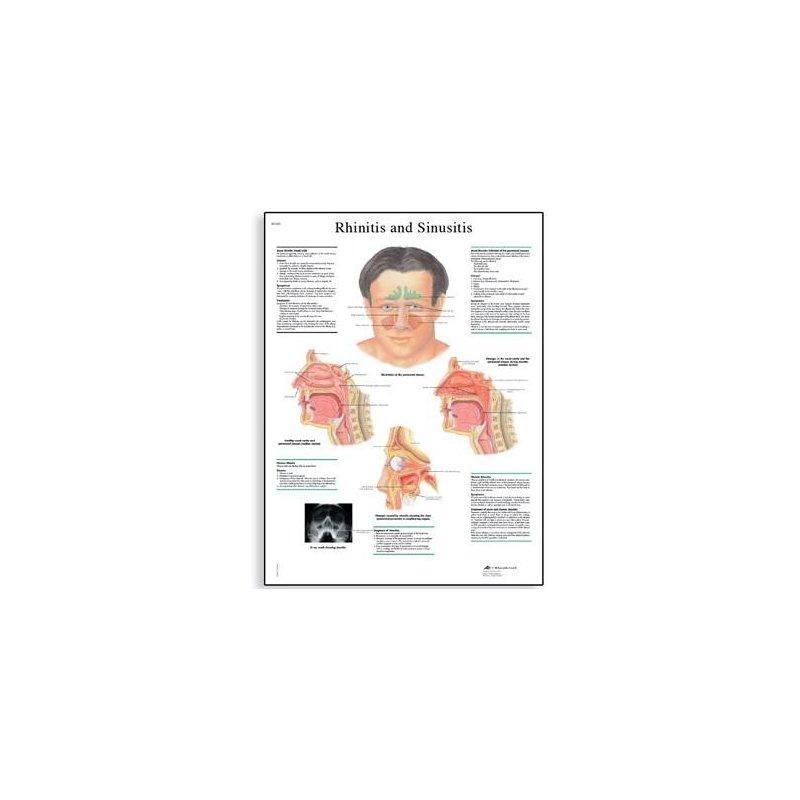 Schéma - rinitida a sinusitida - AJ - 50x67 cm