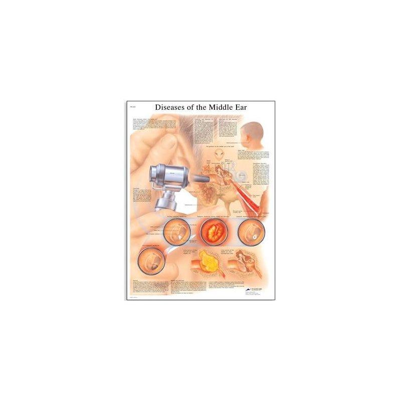 Schéma - nemoci lidského středního ucha - AJ - 50x67 cm