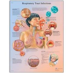 Schéma - infekce dýchacího systému - AJ - 50x67 cm