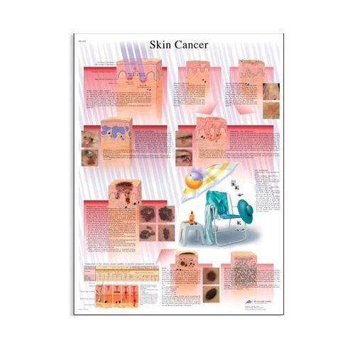 Schéma - rakovina lidské kůže - AJ - 50x67 cm