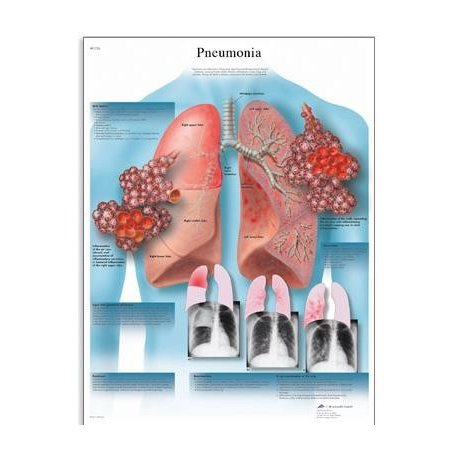 Schéma - pneumonie - AJ - 50x67 cm
