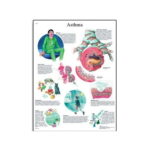 Schéma - astma - AJ - 50x67 cm - DOPRODEJ