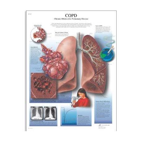 Schéma - chronická obstrukční plicní nemoc - AJ - 50x67 cm