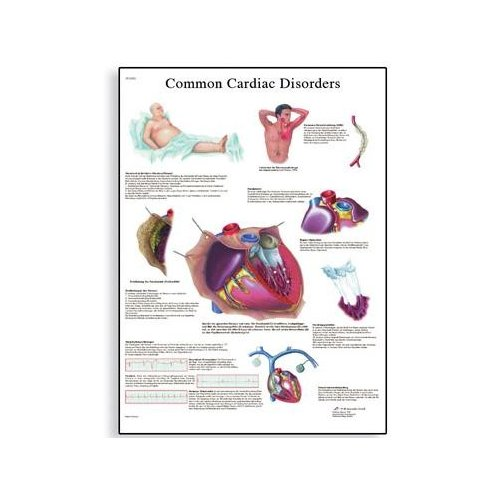 Schéma - běžné onemocnění srdce - AJ - 50x67 cm