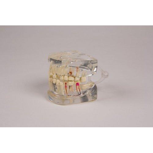 Model lidské čelisti - průhledný - se zuby