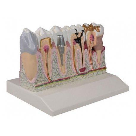 Model lidských zubů - čtyřikrát zvětšeno