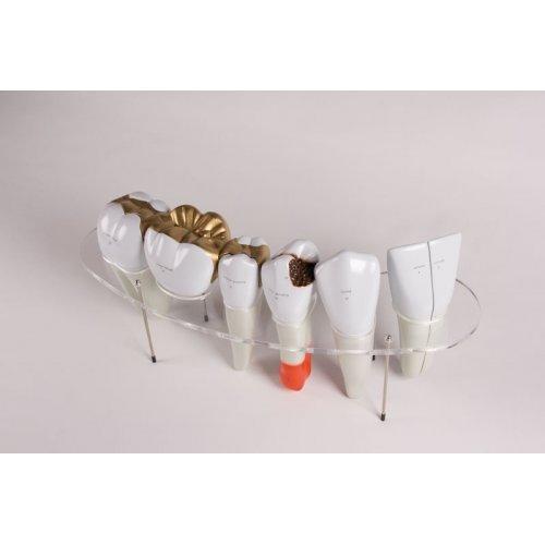 Model lidských zubů - desetkrát zvětšeno - 7 částí