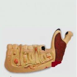 Model vývoje lidských zubů - třikrát zvětšeno