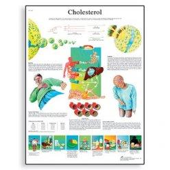 Schéma - cholesterol - AJ - 50x67 cm