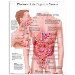 Schéma - nemoci lidské trávící soustavy - AJ - 50x67 cm