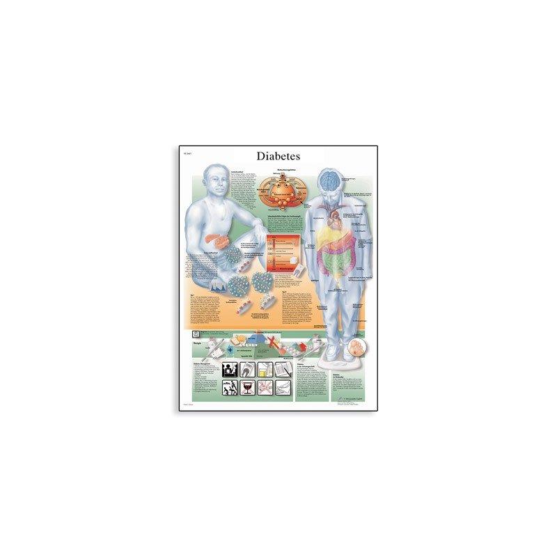 Schéma - cukrovka - AJ - 50x67 cm