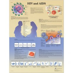 Schéma - HIV virus a AIDS - AJ - 50x67 cm