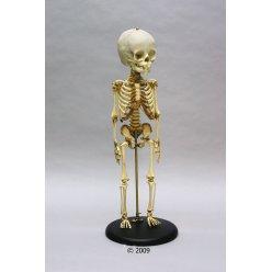 Model kostry dítěte - 14. - 16. měsíc