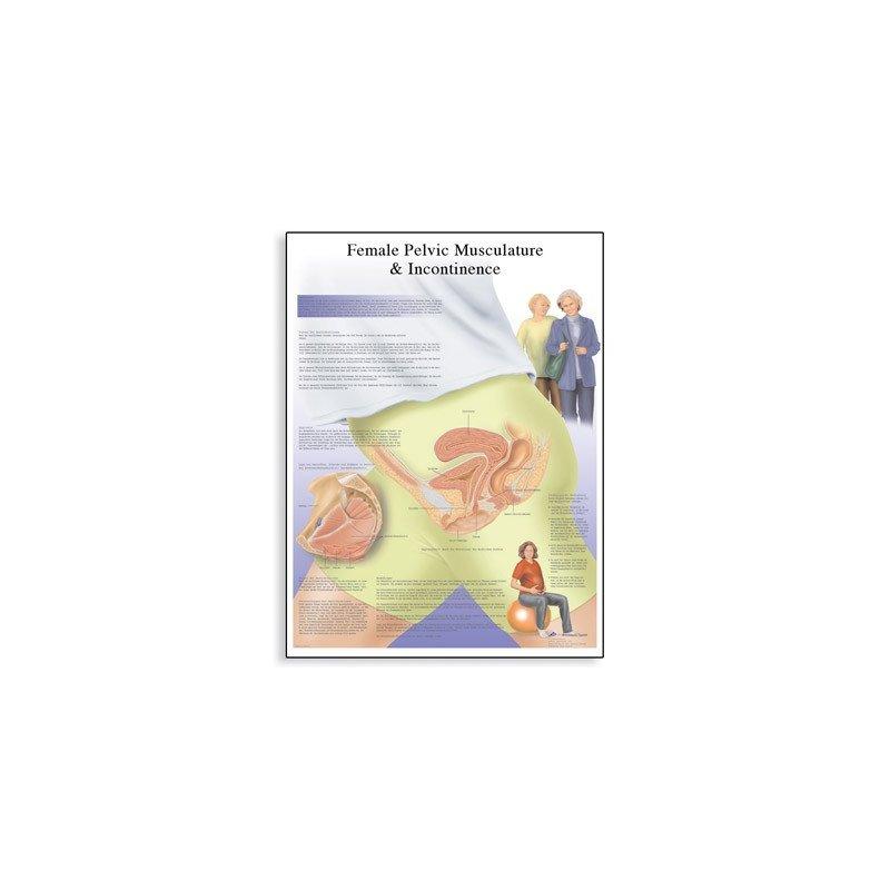 Schéma - inkontinence u žen - AJ - 50x67 cm