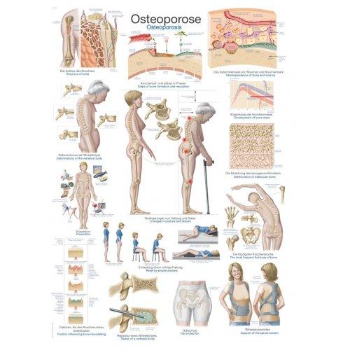 Schéma - osteoporóza
