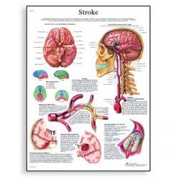 Schéma - cévní mozková příhoda - AJ - 50x67 cm