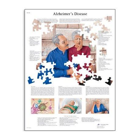 Schéma - Alzheimerova nemoc - AJ - 50x67 cm