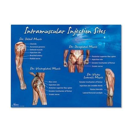 Schéma - aplikace intramuskulárních injekcí - AJ