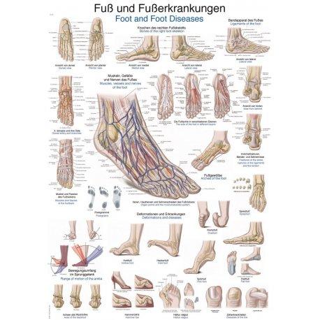 Schéma - anatomie nohy a její nemoci