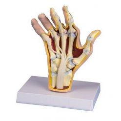 Model lidské ruky s revmatoidní artritidou