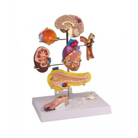 Model diabetes mellitus II. typu