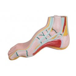 Model lidské nohy - pes cavus - klenutá noha
