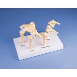 Čtyři stádia osteoartritidy ramenního kloubu