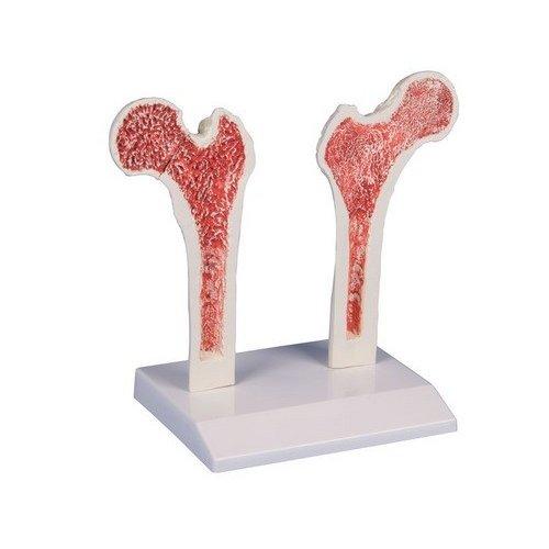 Model osteoporózy - stehenní kost