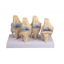 Model osteoartritidy kolenního kloubu