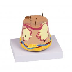 Model kožního akné