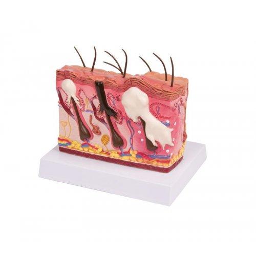 Model lidské kůže s akné