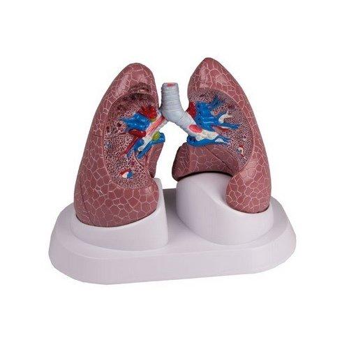 Model onemocnění plic