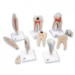 Série modelů lidských zubů - 5 modelů