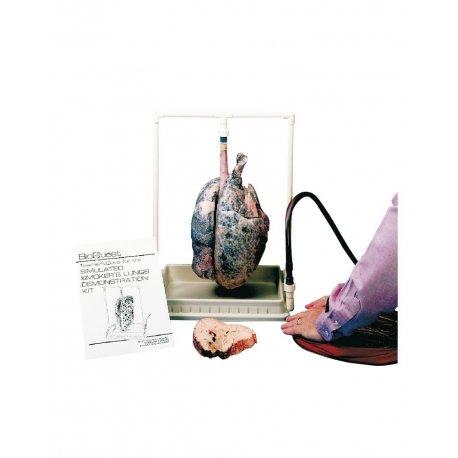 Demonstrativní model plic kuřáka