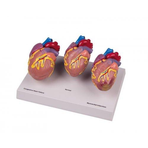Model onemocnění lidského srdce