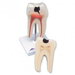 Model lidského zubu - spodní stolička s dvojitým kořenem a kazem - 2 části