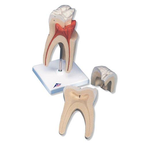 Model lidského zubu - horní stolička s trojitým kořenem - 3 části - DOPRODEJ