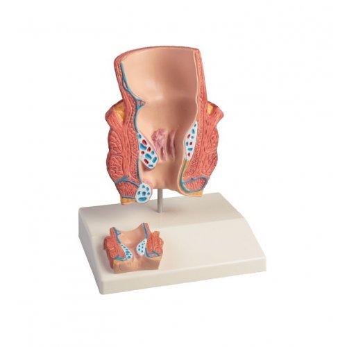 Model lidského hemoroidu - dvakrát zvětšeno